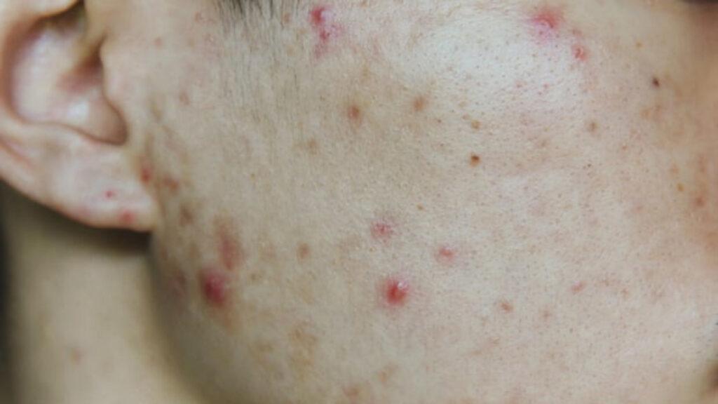 Por primera vez Inglaterra recomienda apoyo para la salud mental de personas con acné