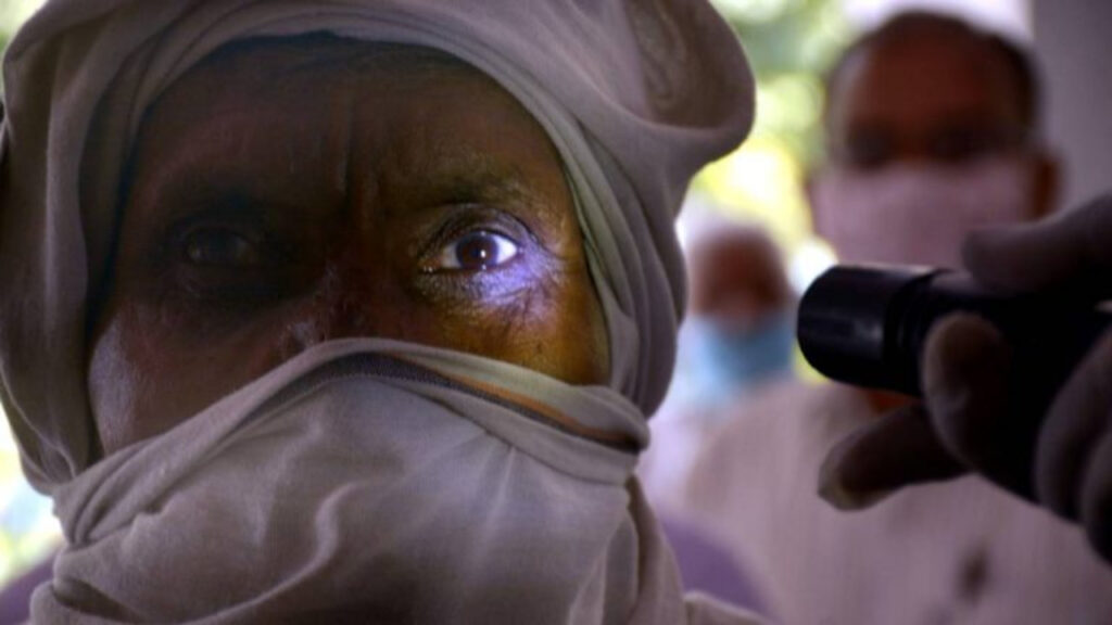"""El """"hongo negro"""" detona otra emergencia en India además del Covid"""