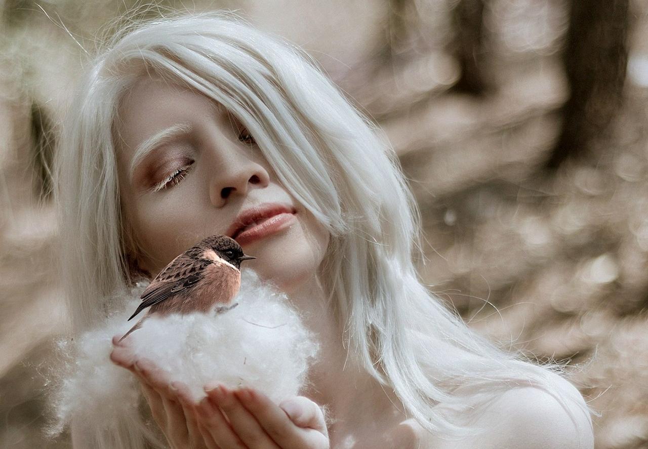 Foto de Ruby Vizcarra, modelo albina