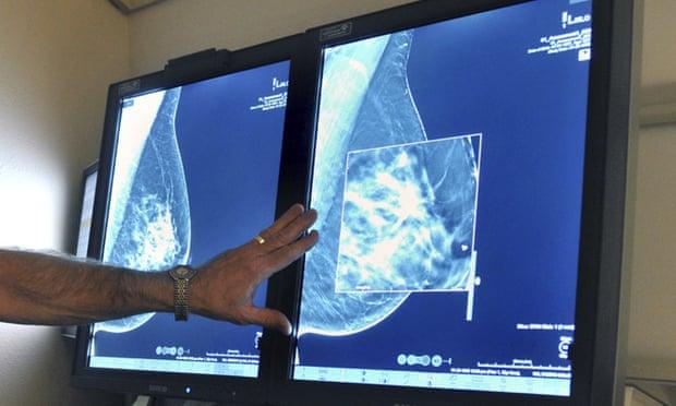 Comienza ensayos la resonancia magnética más detallada para detectar temprano el cáncer de mama